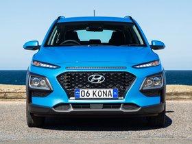 Ver foto 6 de Hyundai Kona Active Australia 2017