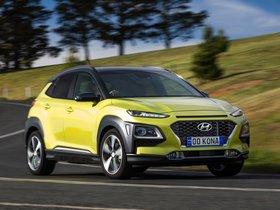 Ver foto 16 de Hyundai Kona Highlander Australia 2017